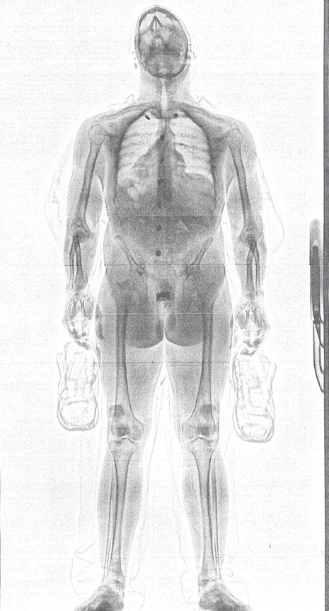 Cops: Full-Body Scanner Trips Up Inmate Who Sought To Smuggle Phone