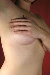 Nipple Caper