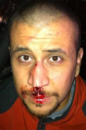 George Zimmerman bleeding